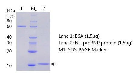 抗人N端脑利钠肽前体抗体-聚丙烯酰胺凝胶电泳和蛋白质印迹法(免疫印迹试验WB)