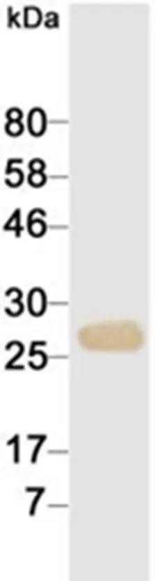 抗心肌肌钙蛋白I抗体-蛋白质印迹法(免疫印迹试验WB)