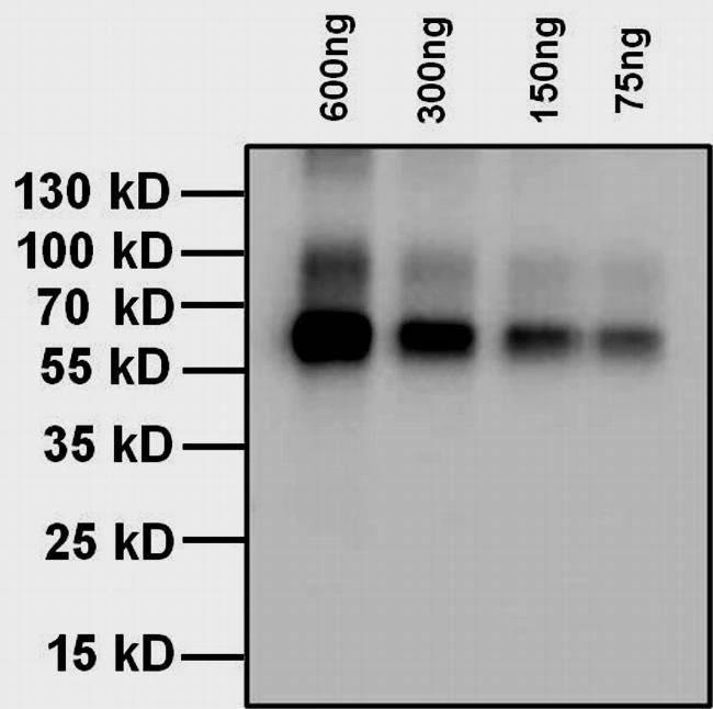 抗甲状腺素T4抗体-蛋白质印迹法(免疫印迹试验WB)