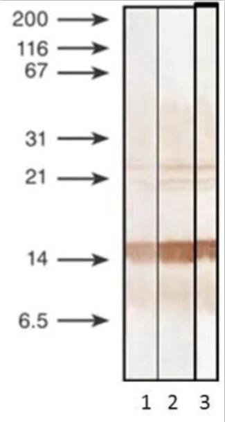 抗降钙素原抗体-蛋白质印迹法(免疫印迹试验WB)