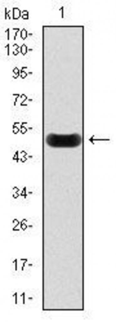 抗C反应蛋白抗体-蛋白质印迹法(免疫印迹试验WB)