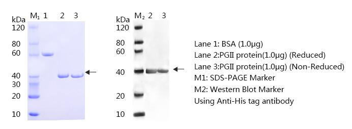 胃蛋白酶原Ⅱ-蛋白质印迹法(免疫印迹试验WB)