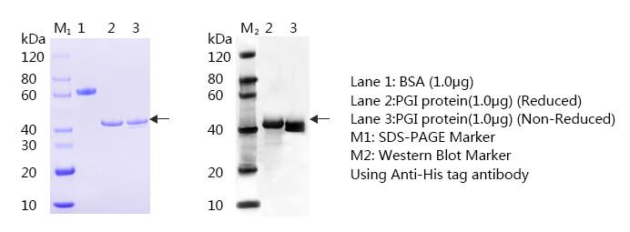 胃蛋白酶原I-蛋白质印迹法(免疫印迹试验WB)